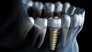 Dental Implant Dentists in Fort Worth TX - Fort Worth Dental 76132