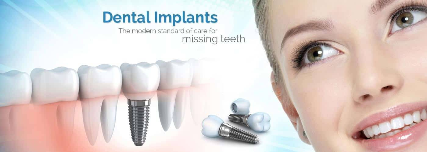 Dental Implants Dentist Fort Worth TX 76132